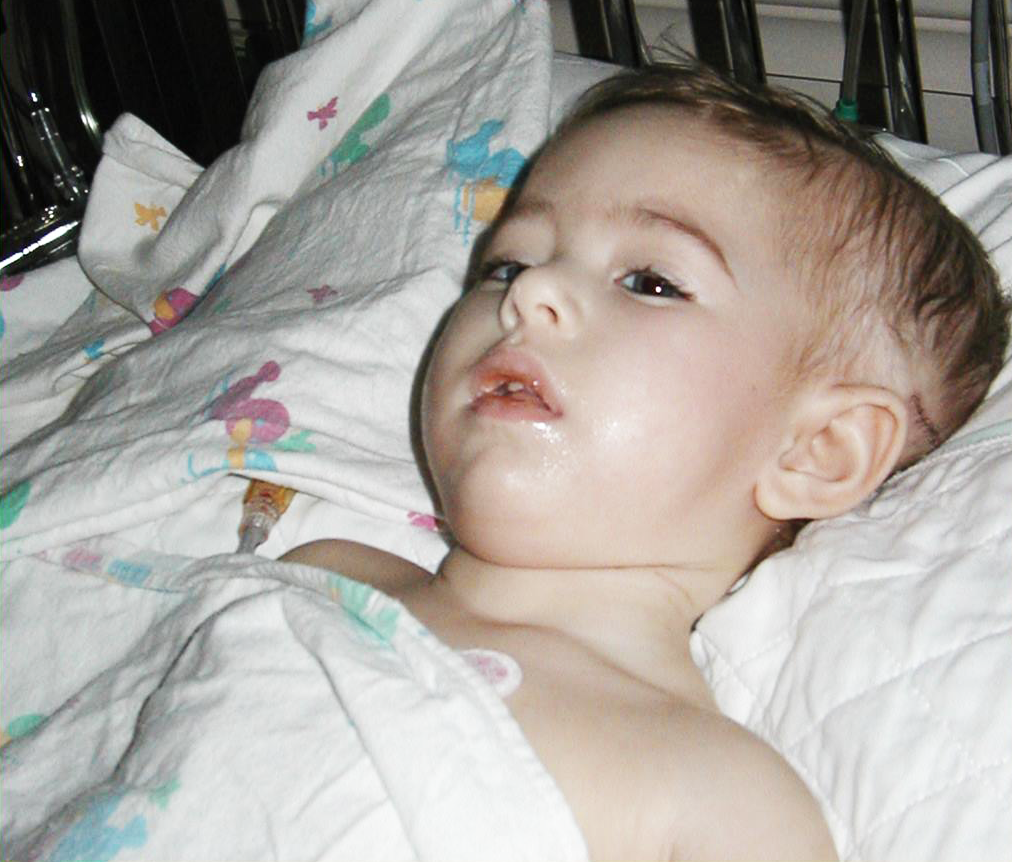 Livy's First Surgery